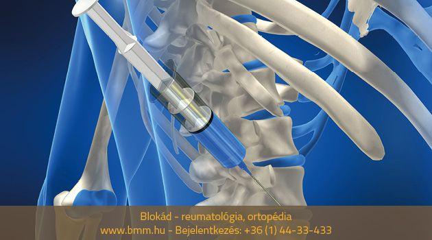 gyógyszeres blokád ízületi fájdalom