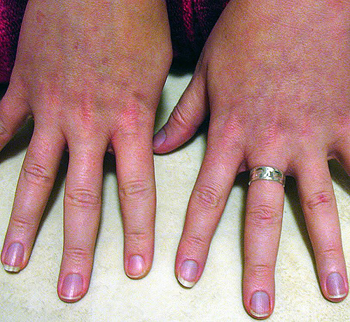 gyűrűs ujj sérülése