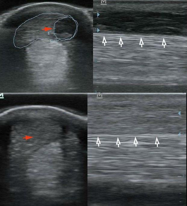 hogyan lehet enyhíteni a lábak ízületi fájdalmait medencegyulladás