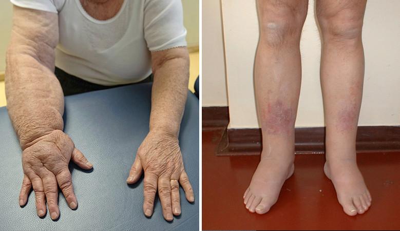 a könyökízületek rheumatoid arthritis tünetei fájdalom az ujjízület hajlításakor a kezén