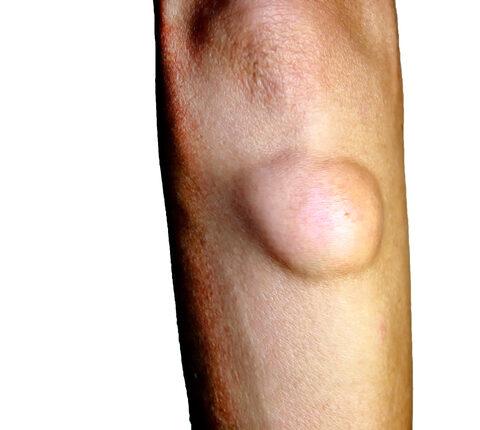 A ganglion - Dudor kialakulása az ízületeknél