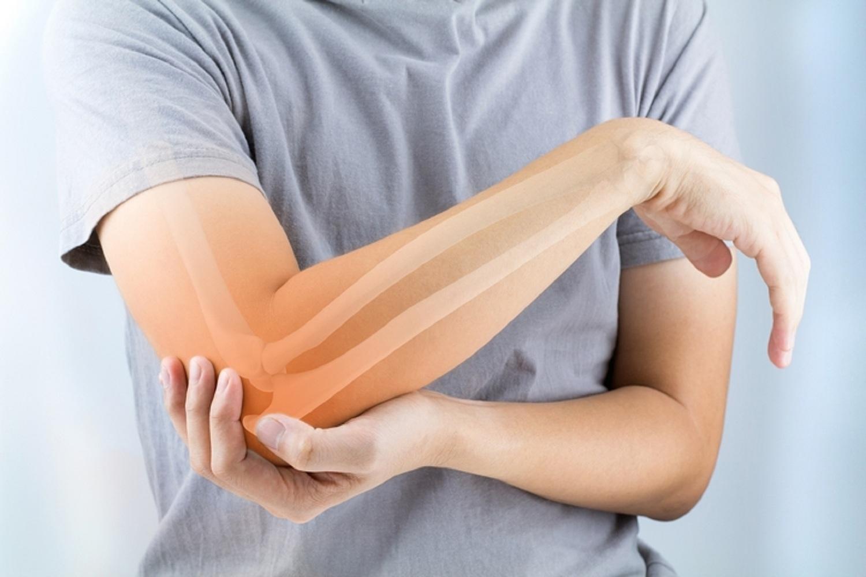 hogyan lehet enyhíteni az ízületek gyulladását és duzzanatát