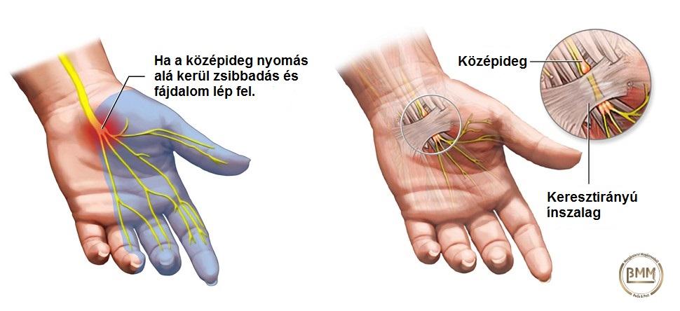 hogyan lehet eltávolítani a lábízület fájdalmát az ujjak ízületeinek gennyes gyulladása