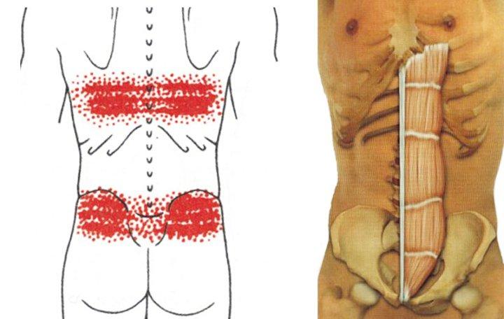 izom-csontrendszeri és kötőszöveti betegség
