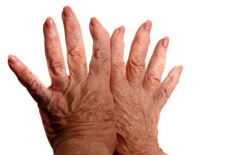 izületi gyulladás kézen kezelése