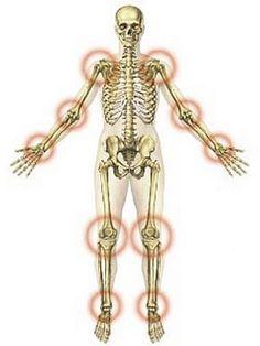 izületi gyulladás és ízületi gyulladás kezelése)