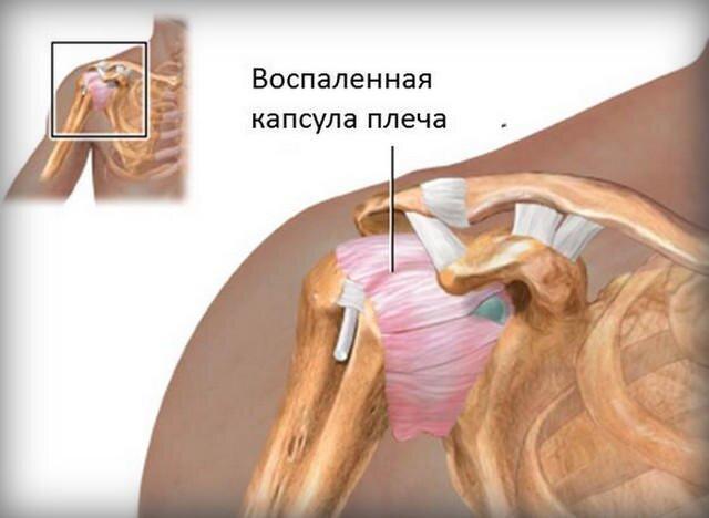 fájdalom duzzanat a karok és a lábak ízületeiben kézízületi gyulladás és annak következményei