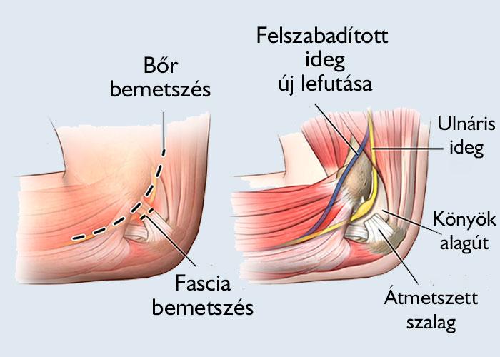 könyök ízületi tünetek és kezelés)
