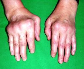 kötőszöveti károsodás reumás betegségek esetén)