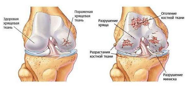 térd artrózisa 3 fokos gyógyszeres kezelés törlők artrózis kezelésére