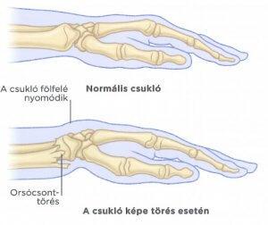 lábízület gyulladás törés után)