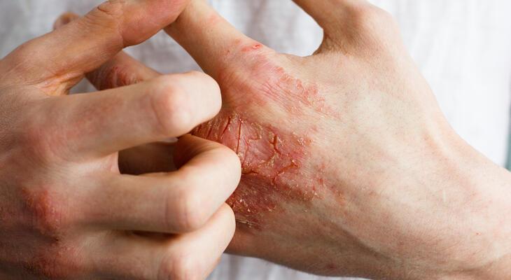 lábízületi súlyosbító kezelés)