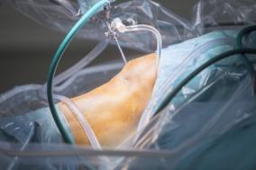 meniszcus térdízület kezelési áttekintés