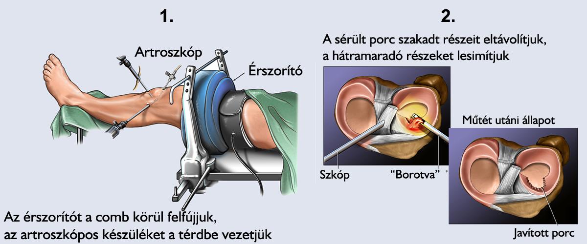 meniszkusz térdízület kezelése