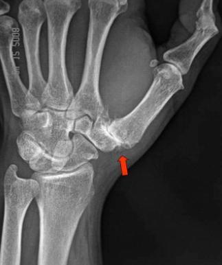metacarpalis carpal artrosis)