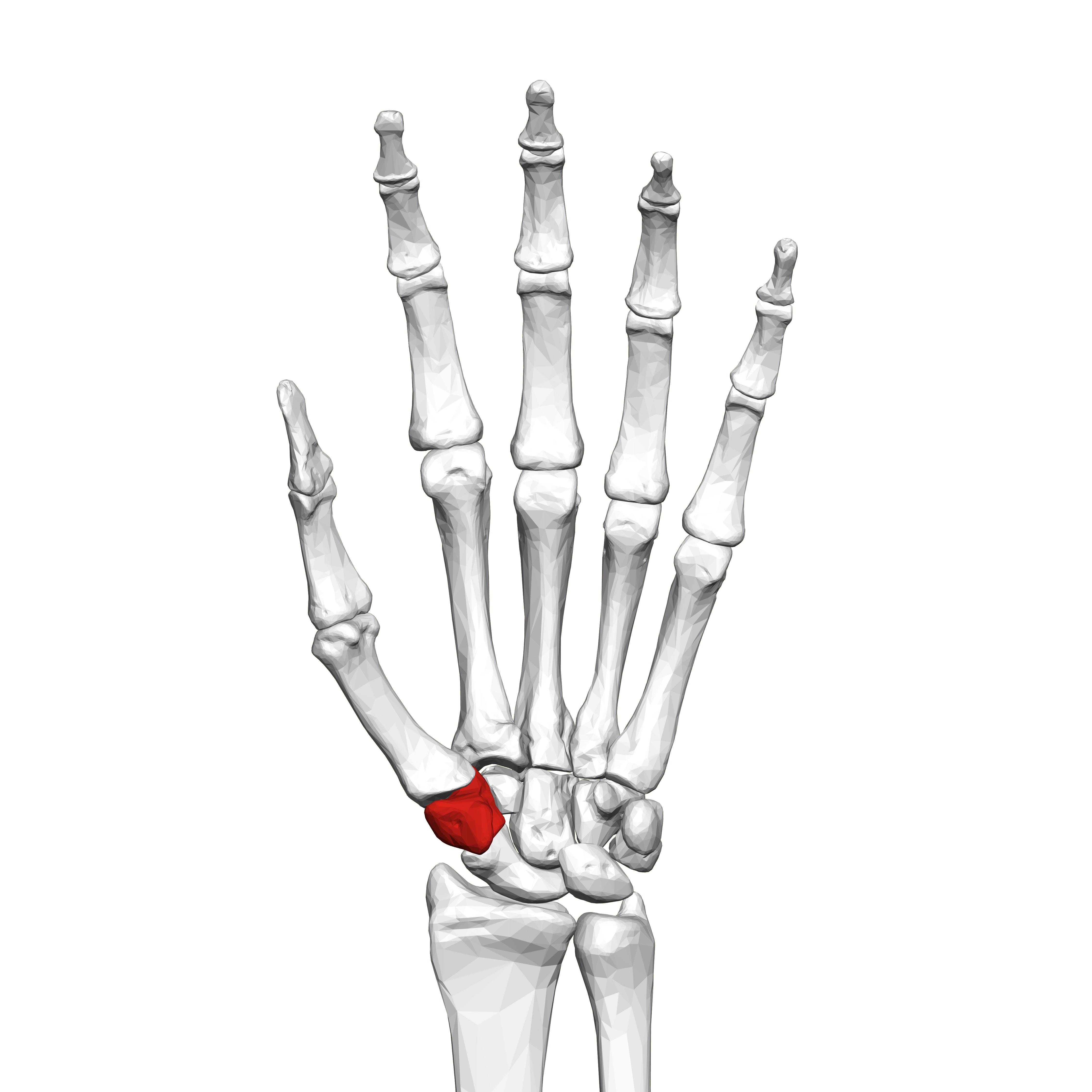 metacarpalis carpal artrosis