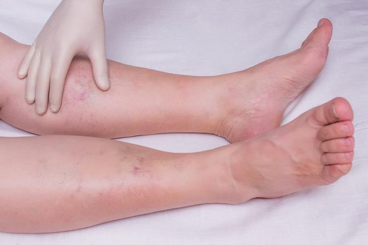 Komoly bajra is utalhat a duzzadt boka és láb