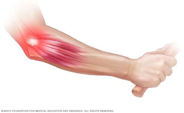 tartós fájdalom a bal kéz vállízületében