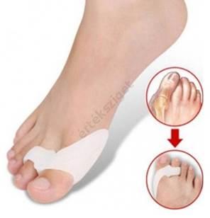 nagy lábujj ízületi kezelés)