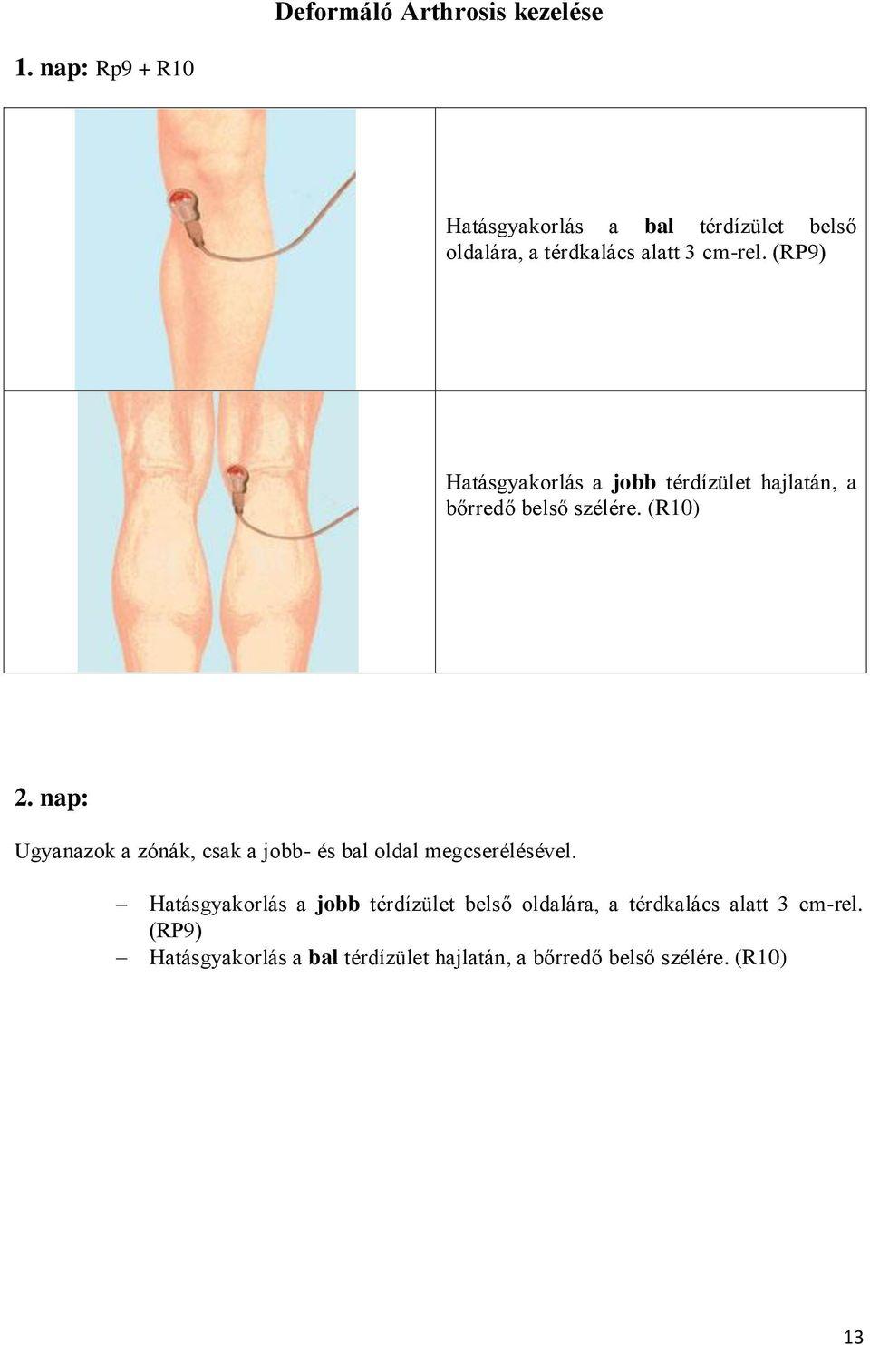 orvosi epe az artrózis kezelésében)