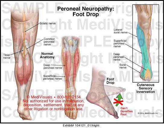 osteoarthritis kezelés elve az artrózis legjobb kezelése