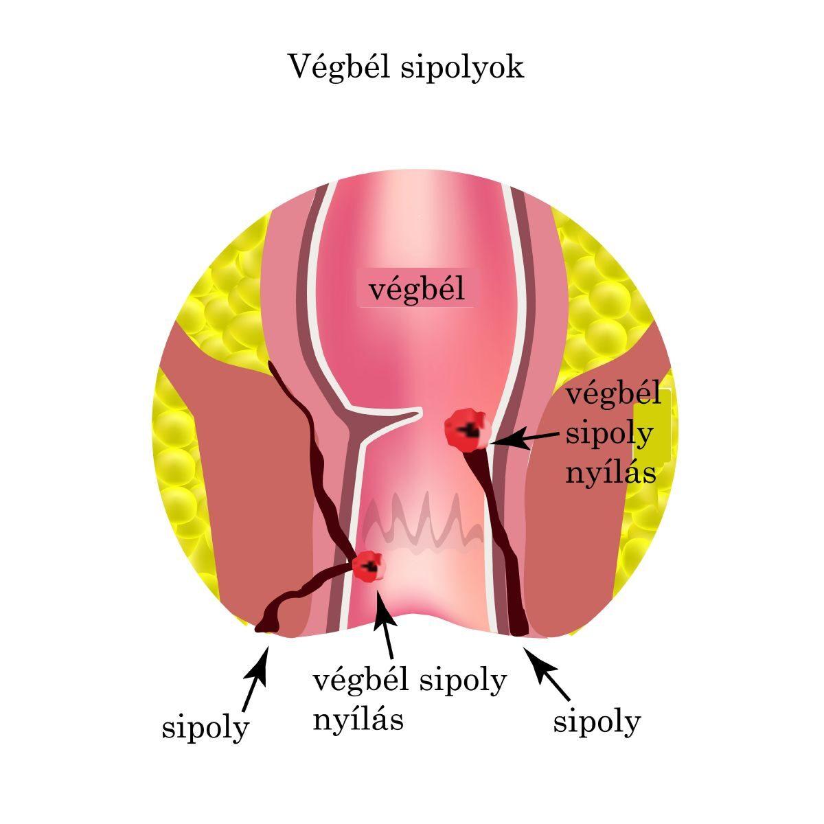 polioxidónium ízületi betegségek kezelésére)