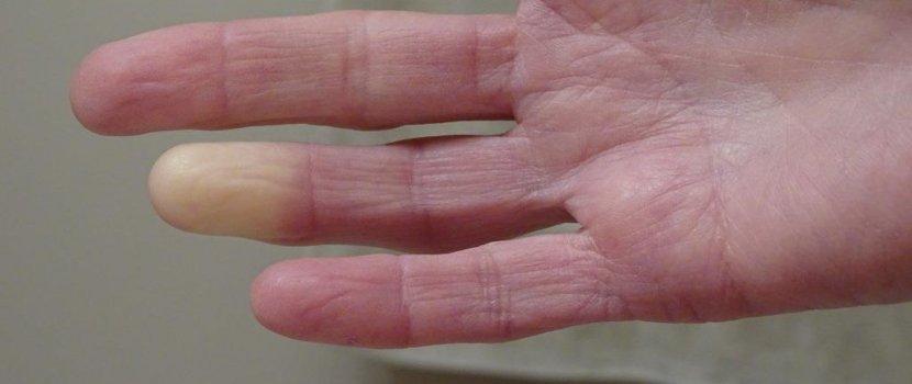 raynaud ízületi fájdalom szindróma