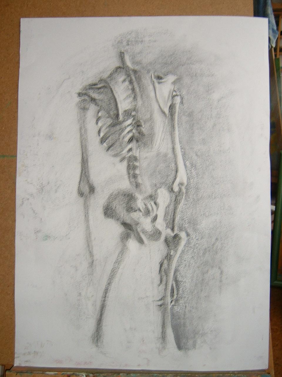 spondylarthrosis artrózis a gerinc ízületeiben)