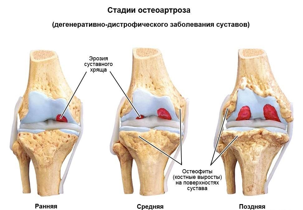 synovitis térdbetegség)