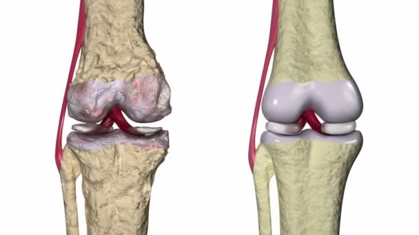 térd kenőcső osteoarthritis