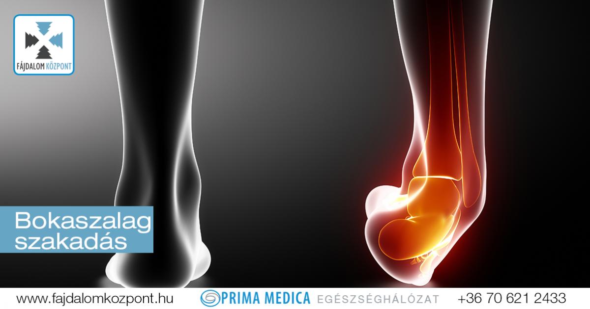 térdfájdalom ligamentum kezelése