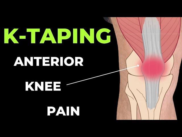 A gonarthrosis-ről - a térdízület kopásos betegsége | Fizio-torna Gyógytorna Központ