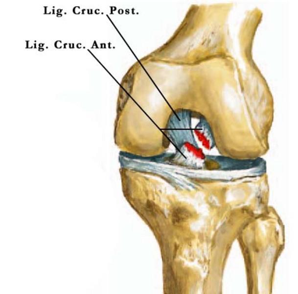 térdízület implantáció