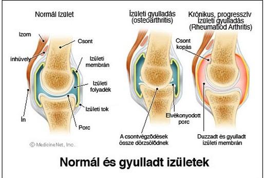 térdízület ízületi gyulladásos kezelése