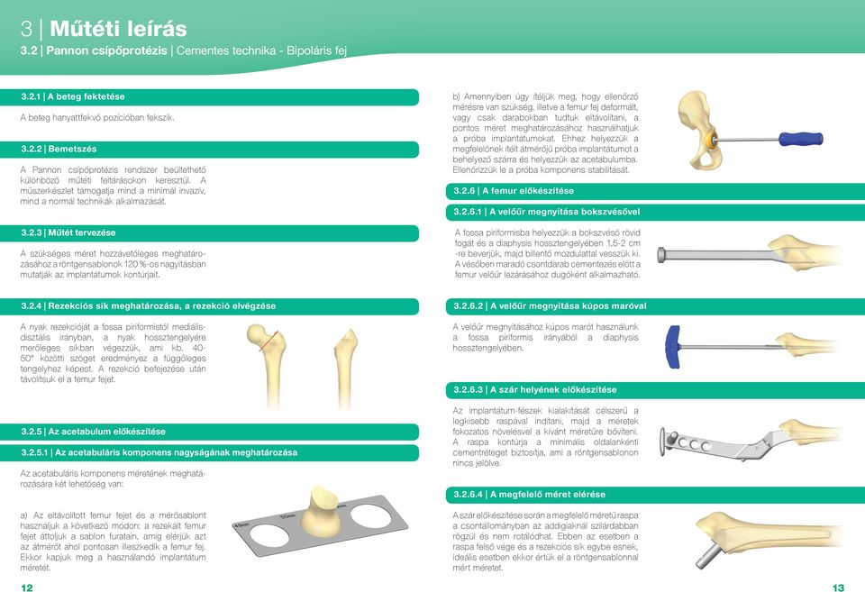 térdízületek kúpos artrózisa 1 fok izmok és ízületek fájnak reggel