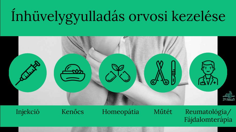 vállfájdalom homeopátia)