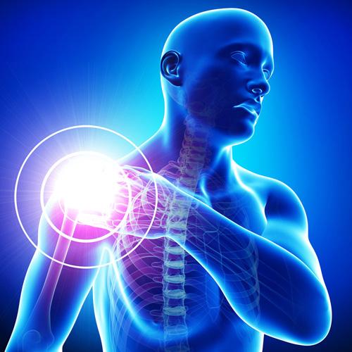 implantátumok a térd artrózisához térd ciszta kezelése