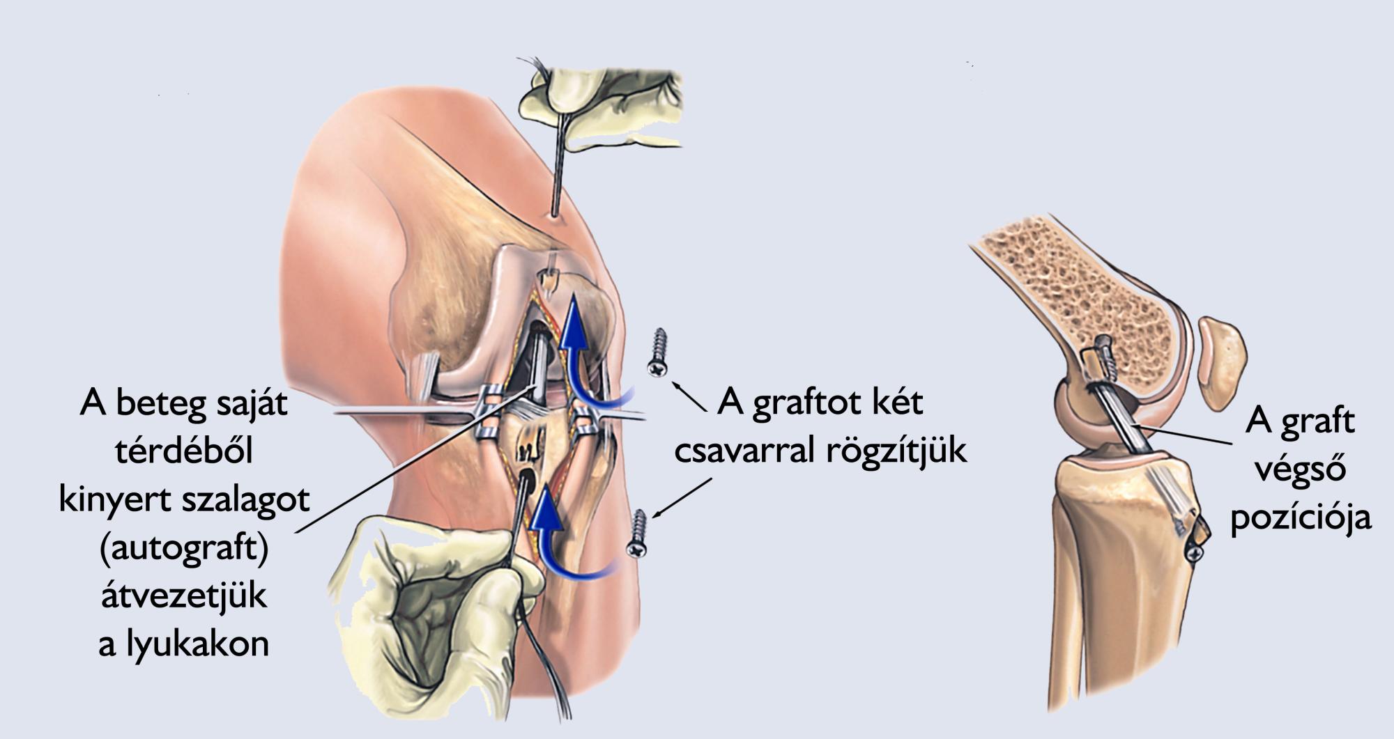 ízületi bypass műtét artrózis esetén)
