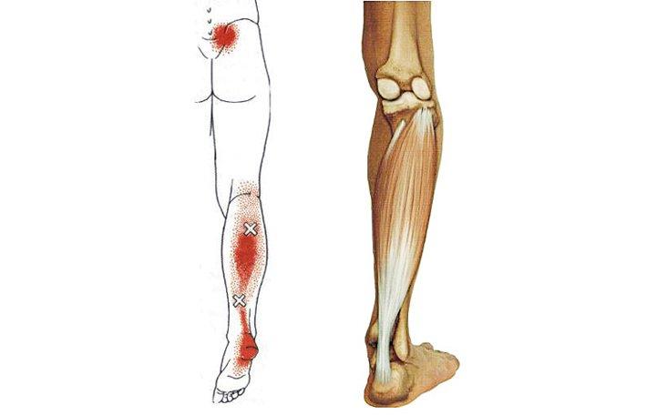 ízületi fájdalom a hipotermia miatt fórum az artrózis kezelésére