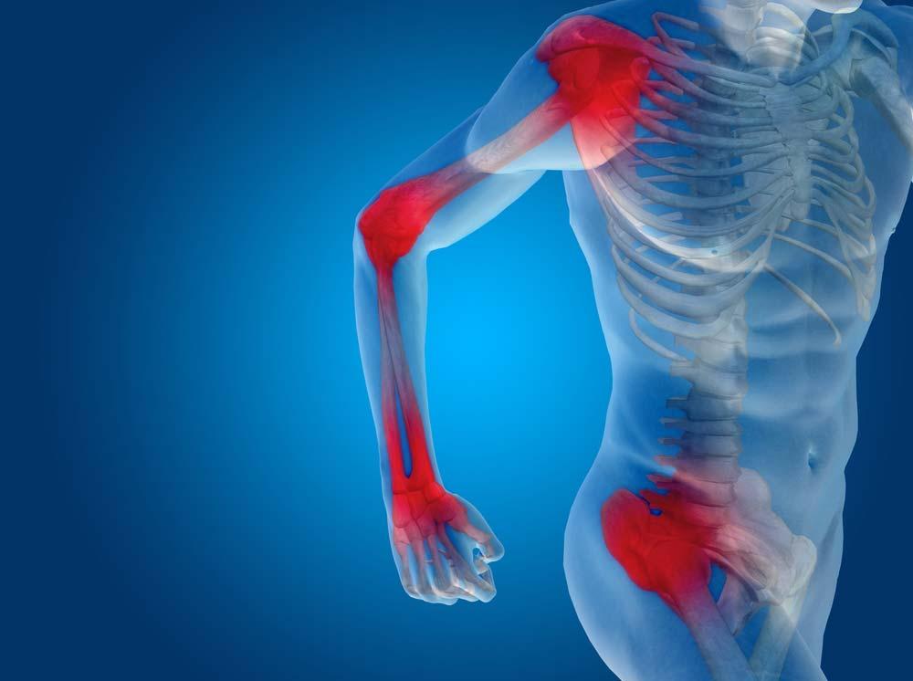 a térdízület 1 és 2 fokának ízületi gyulladása ízületi fájdalom ízületi fájdalmak esetén
