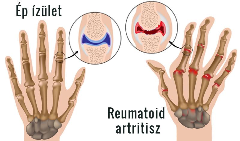 ízületi gyulladás rheumatoid arthritis)