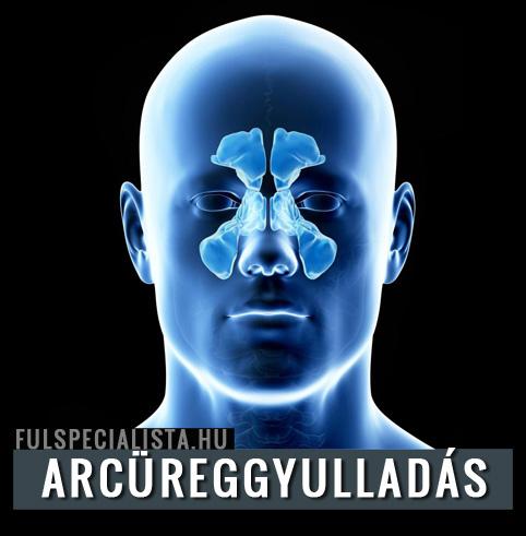 Komplex artróziskezelés. Ízületfeltöltés
