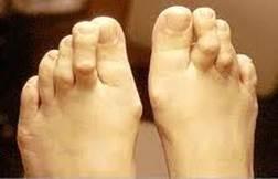 shungite ízületi kezelés mindkét térdízület artrózisa 2 fok