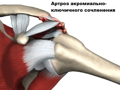 DOA csípő kezelés