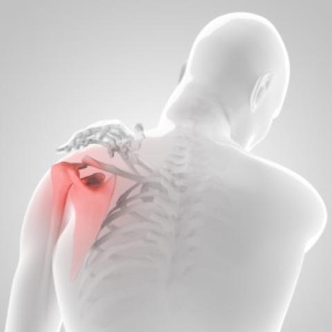 testépítés a vállízület fájdalma miatt)