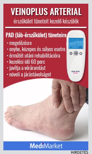 fájdalom a lábak ízületeiben sókezelés