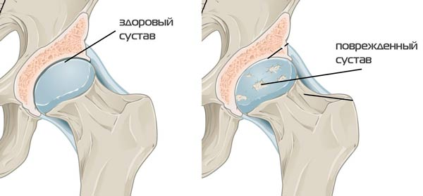 terápiás gyakorlatok a csípőízület artrózisának kezelésében