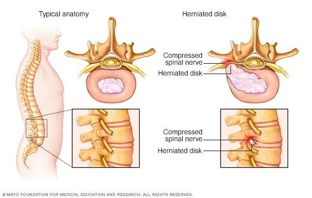 lumbosacral fájdalom a csípőízületekben