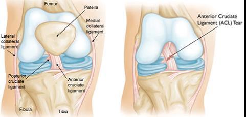 1. eljárás a térd deformáló artrózisának kezelésére