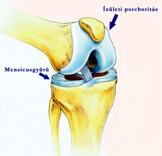 térdízület implantáció)